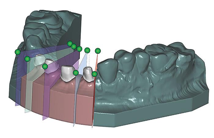 Exocad | Central Dental